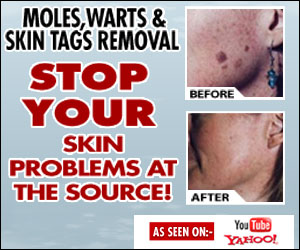 Get Rid Of Moles & Warts Treatment guide