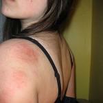 Eczema Treatment – Home Remedy For Eczema
