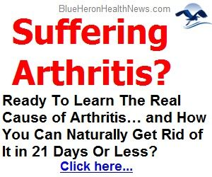 Arthritis Step By Step Strategy